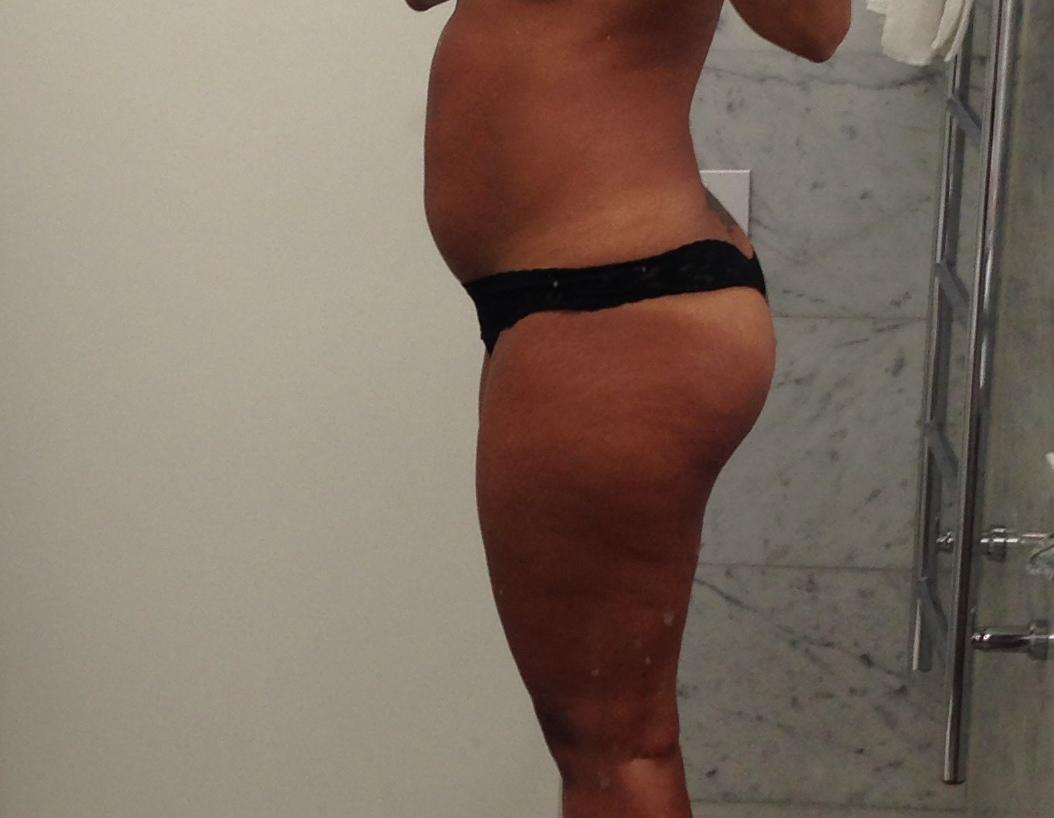 celluliter gravid