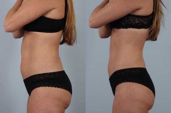 frysa bort fett funkar det