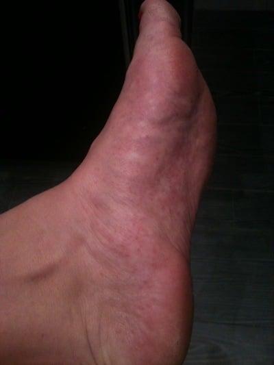 Eksem under foten