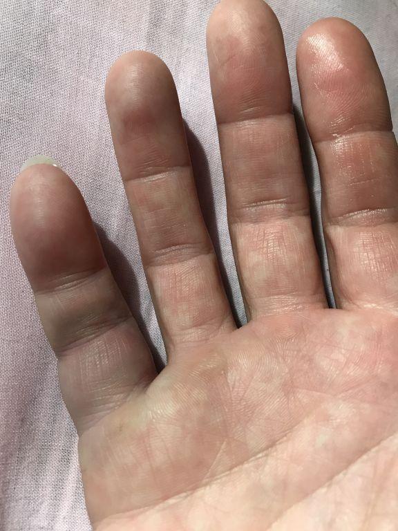 ont i fingret svullet