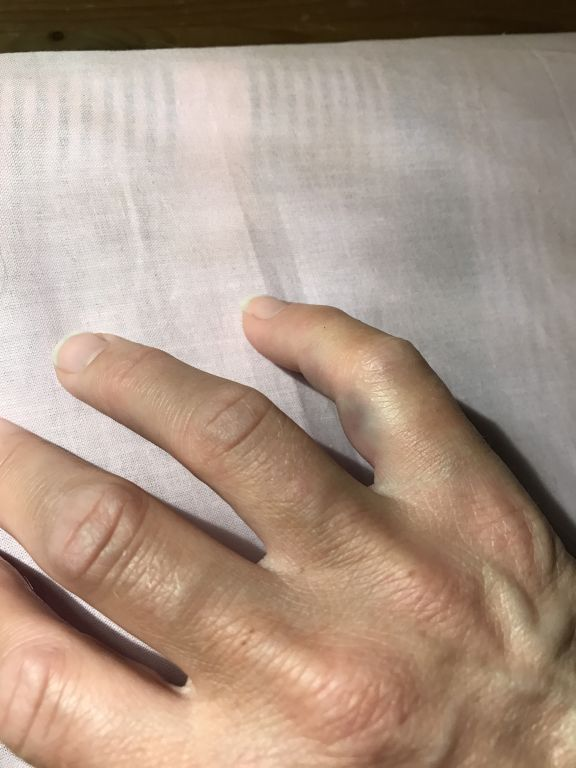 ont i långfingret