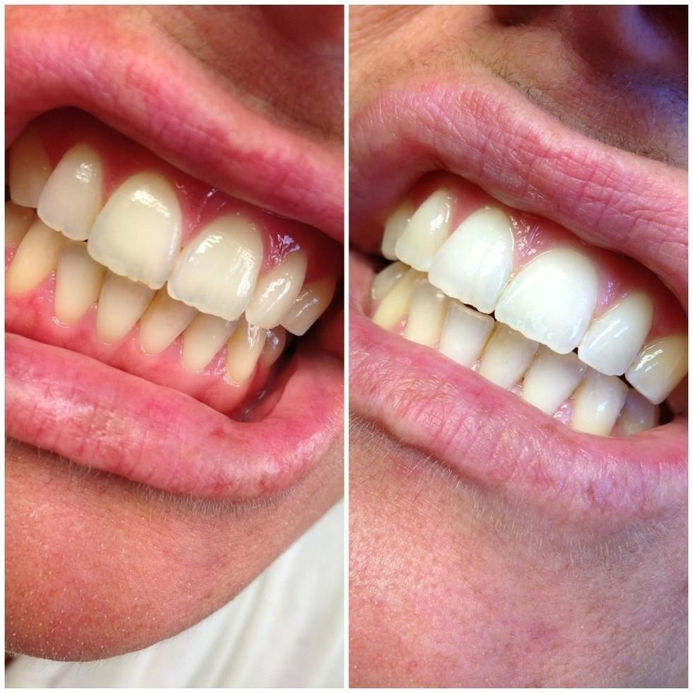 bleka tänderna med bakpulver och citron