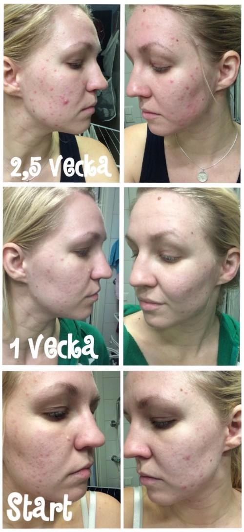 tetralysal acne resultat