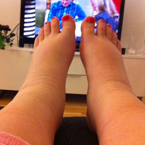 svullna fötter efter graviditet
