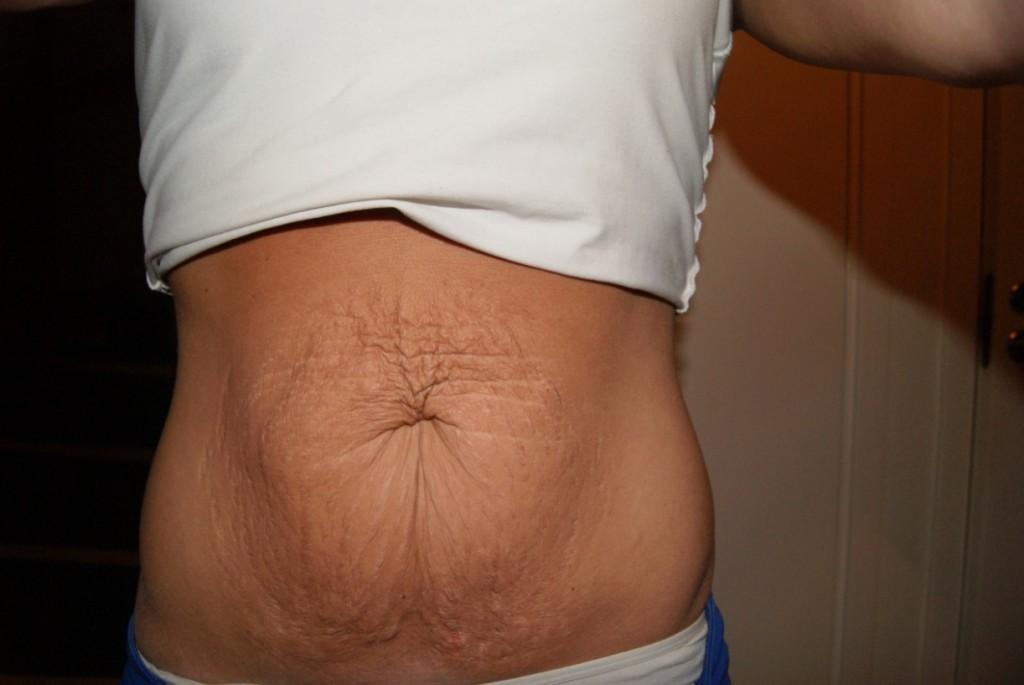 operation mage efter graviditet