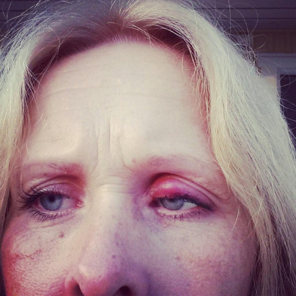 ögoninflammation salva